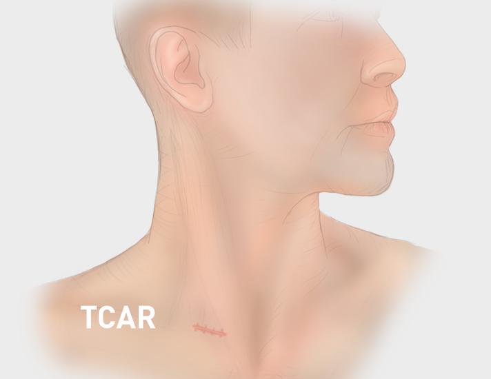 Elite Heart Surgeons TCAR vs CEA Scars Post